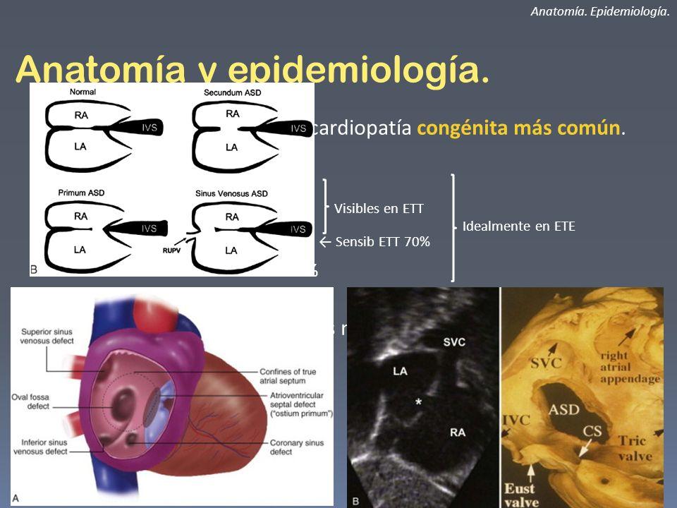Anatomía y asociaciones.CIA ostium primum.
