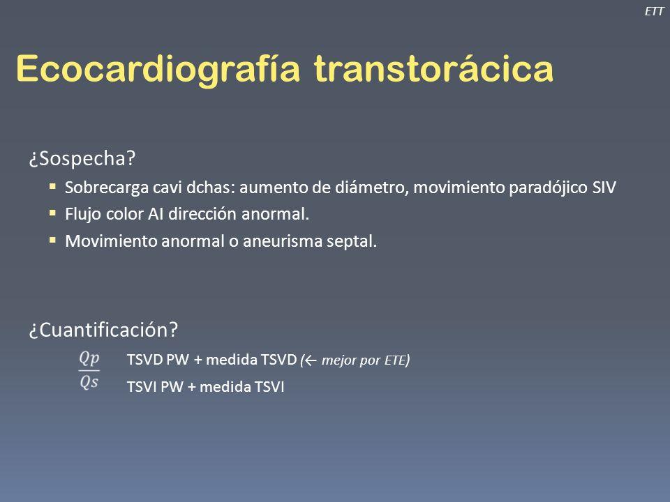 Ecocardiografía transtorácica ¿Sospecha? Sobrecarga cavi dchas: aumento de diámetro, movimiento paradójico SIV Flujo color AI dirección anormal. Movim