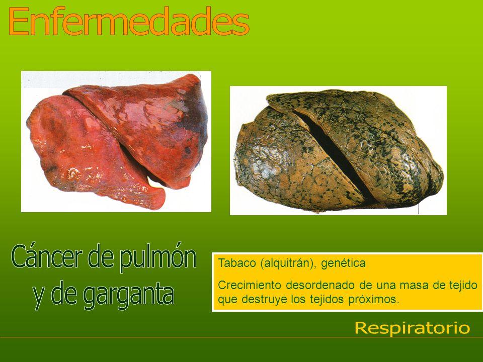 Tabaco (alquitrán), genética Crecimiento desordenado de una masa de tejido que destruye los tejidos próximos.