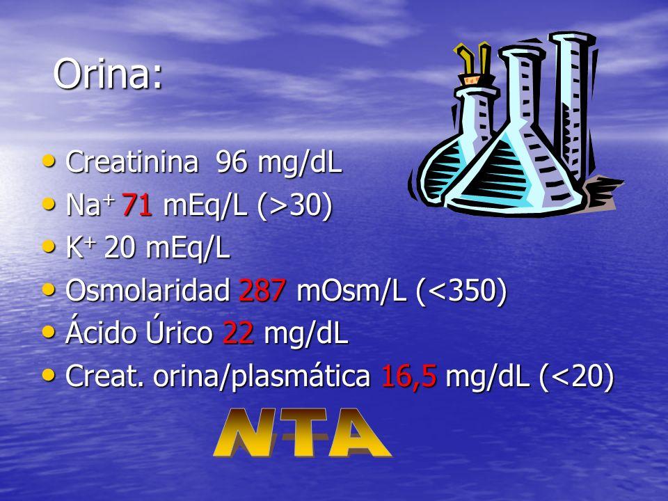 Orina: Orina: Creatinina 96 mg/dL Creatinina 96 mg/dL Na + 71 mEq/L (>30) Na + 71 mEq/L (>30) K + 20 mEq/L K + 20 mEq/L Osmolaridad 287 mOsm/L (<350) Osmolaridad 287 mOsm/L (<350) Ácido Úrico 22 mg/dL Ácido Úrico 22 mg/dL Creat.