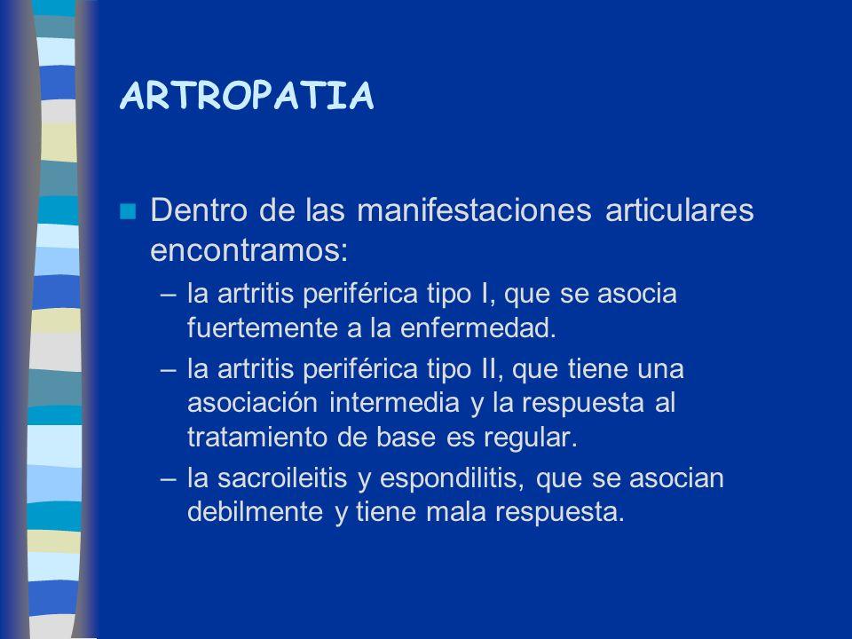 ARTROPATIA Dentro de las manifestaciones articulares encontramos: –la artritis periférica tipo I, que se asocia fuertemente a la enfermedad. –la artri