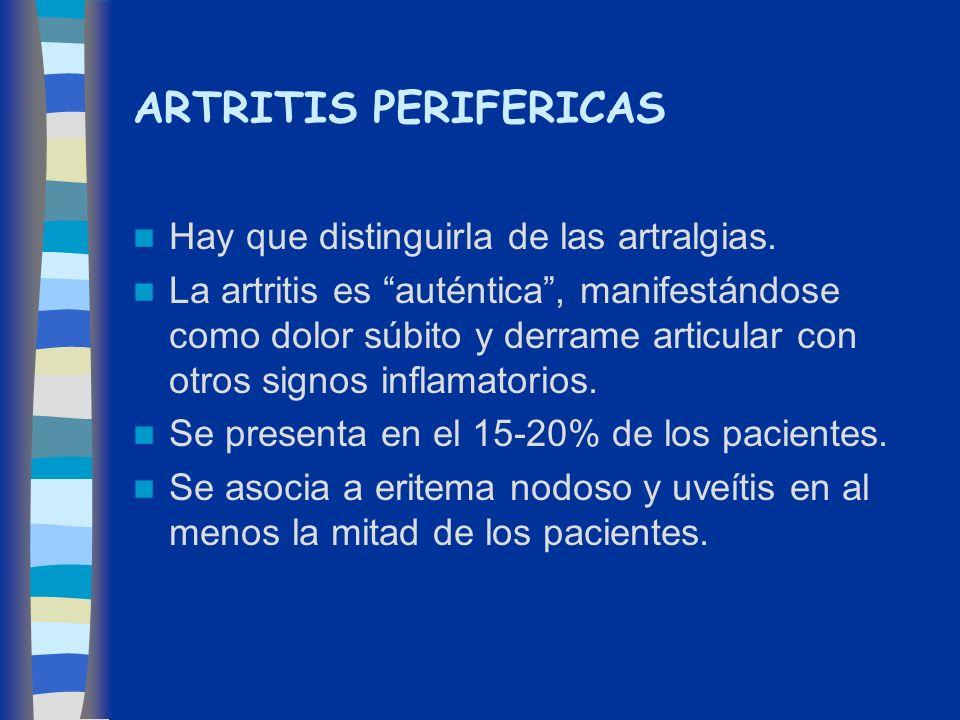 ARTRITIS PERIFERICAS Hay que distinguirla de las artralgias. La artritis es auténtica, manifestándose como dolor súbito y derrame articular con otros