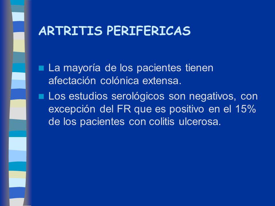 ARTRITIS PERIFERICAS La mayoría de los pacientes tienen afectación colónica extensa. Los estudios serológicos son negativos, con excepción del FR que