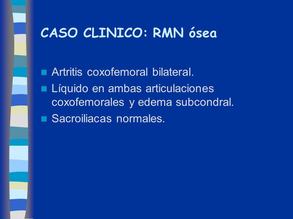 CASO CLINICO: RMN ósea Artritis coxofemoral bilateral. Líquido en ambas articulaciones coxofemorales y edema subcondral. Sacroiliacas normales.