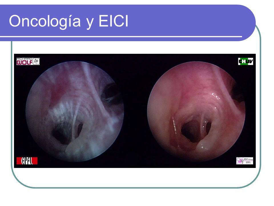 Oncología y EICI