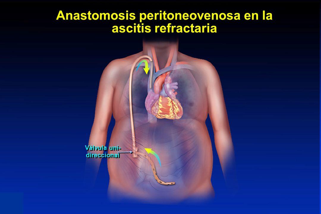 Anastomosis peritoneovenosa en la ascitis refractaria Válvula uni- direccional PERITONEO-VENOUS SHUNT (PVS) IS USEFUL IN THE TREATMENT OF REFRACTORY A