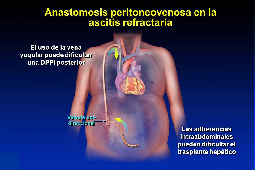Anastomosis peritoneovenosa en la ascitis refractaria El uso de la vena yugular puede dificultar una DPPI posterior Las adherencias intraabdominales p