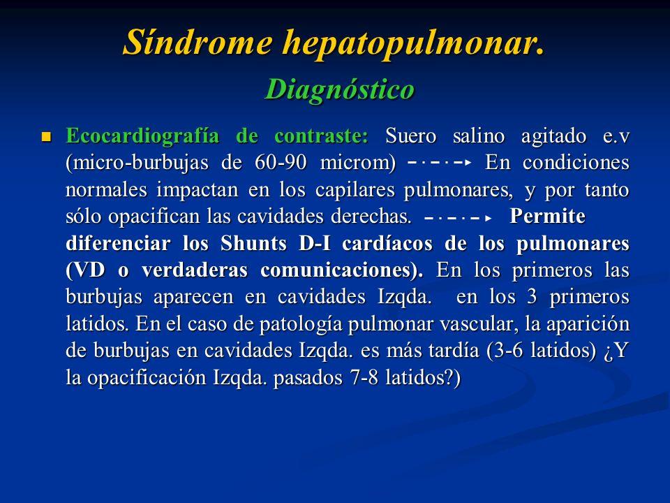 Síndrome hepatopulmonar. Diagnóstico Ecocardiografía de contraste: Suero salino agitado e.v (micro-burbujas de 60-90 microm) En condiciones normales i