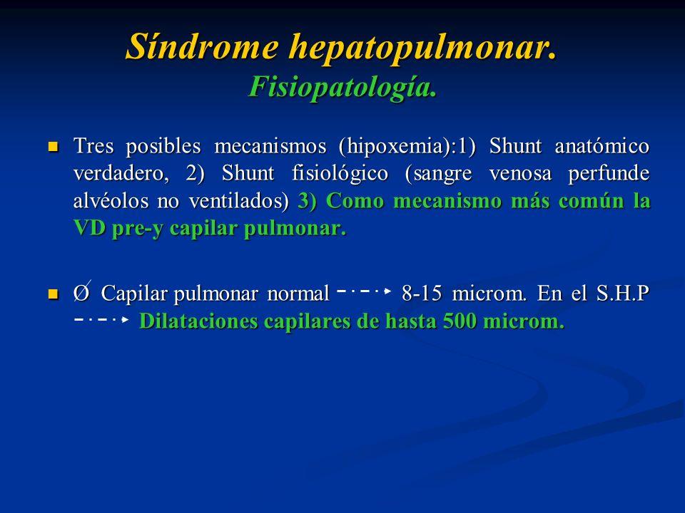 Síndrome hepatopulmonar. Fisiopatología. Tres posibles mecanismos (hipoxemia):1) Shunt anatómico verdadero, 2) Shunt fisiológico (sangre venosa perfun