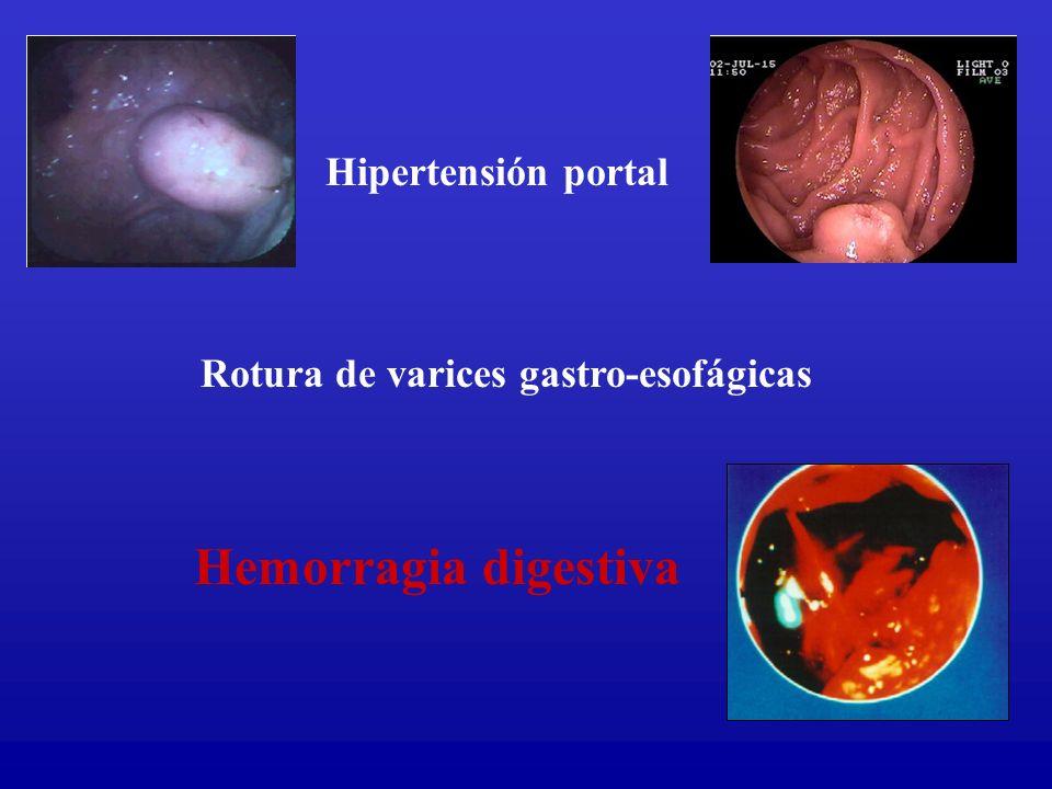Hipertensión portal Rotura de varices gastro-esofágicas Hemorragia digestiva