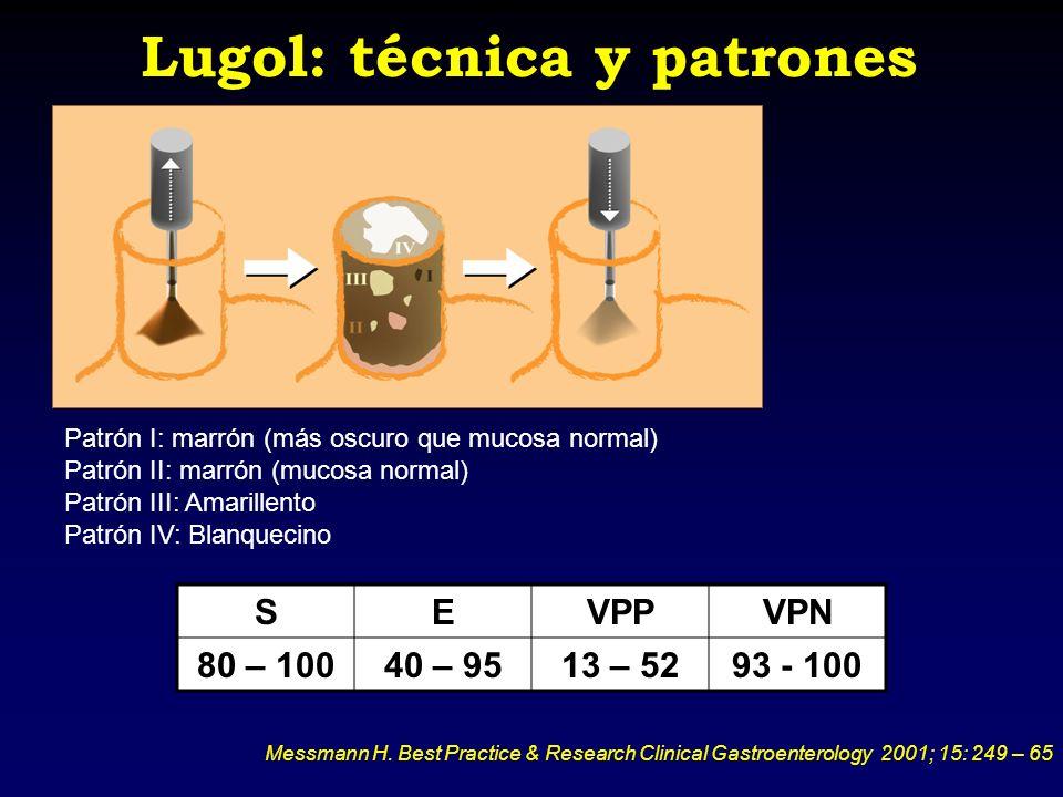 Lugol: técnica y patrones Patrón I: marrón (más oscuro que mucosa normal) Patrón II: marrón (mucosa normal) Patrón III: Amarillento Patrón IV: Blanque