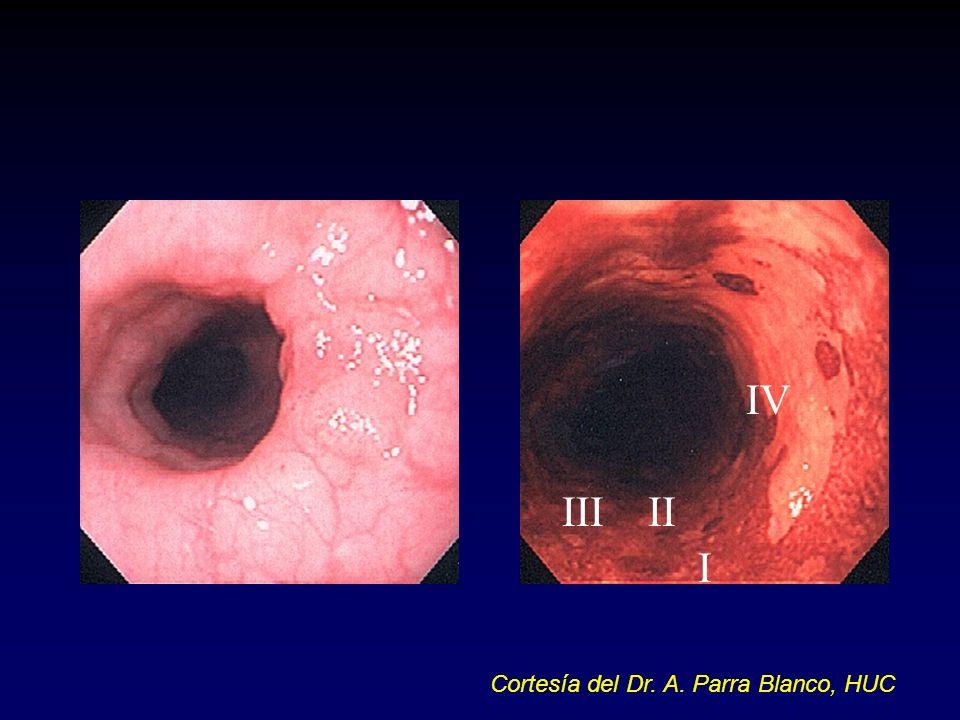 I III IV II Cortesía del Dr. A. Parra Blanco, HUC