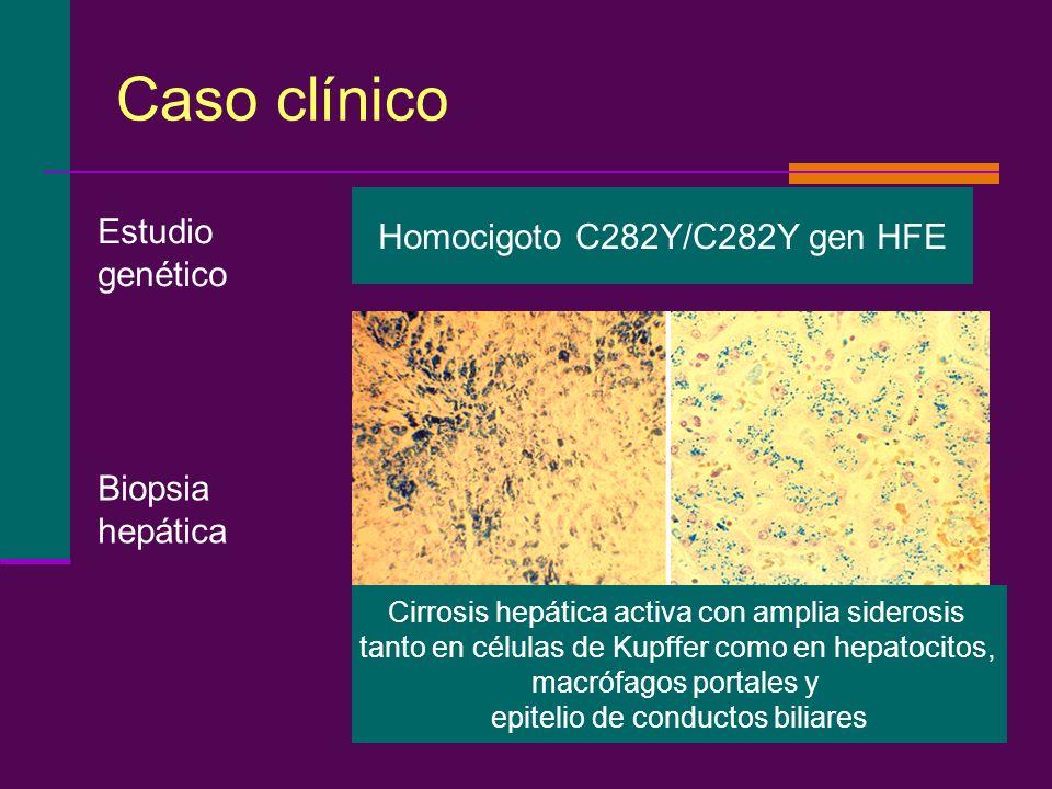 Caso clínico Homocigoto C282Y/C282Y gen HFE Estudio genético Biopsia hepática Cirrosis hepática activa con amplia siderosis tanto en células de Kupffe