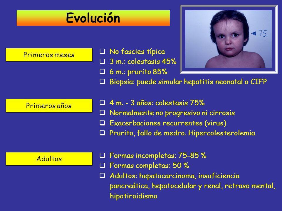 Evolución Primeros meses No fascies típica 3 m.: colestasis 45% 6 m.: prurito 85% Biopsia: puede simular hepatitis neonatal o CIFP Primeros años 4 m.