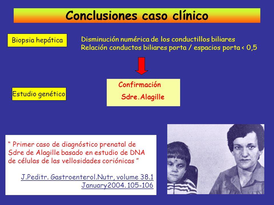 Disminución numérica de los conductillos biliares Relación conductos biliares porta / espacios porta < 0,5 Conclusiones caso clínico Biopsia hepática
