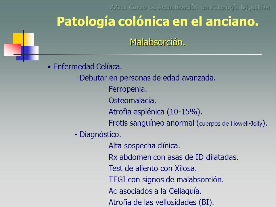 Enfermedad Celíaca. - Debutar en personas de edad avanzada. Ferropenia. Osteomalacia. Atrofia esplénica (10-15%). - Diagnóstico. Alta sospecha clínica