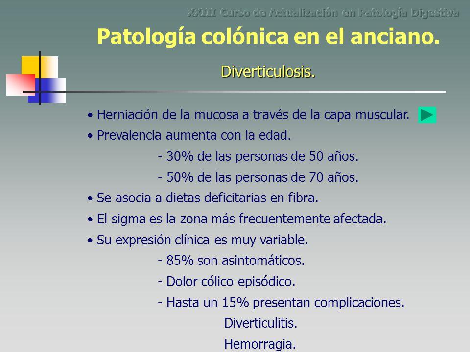 Herniación de la mucosa a través de la capa muscular. - 30% de las personas de 50 años. - 50% de las personas de 70 años. - 85% son asintomáticos. Div