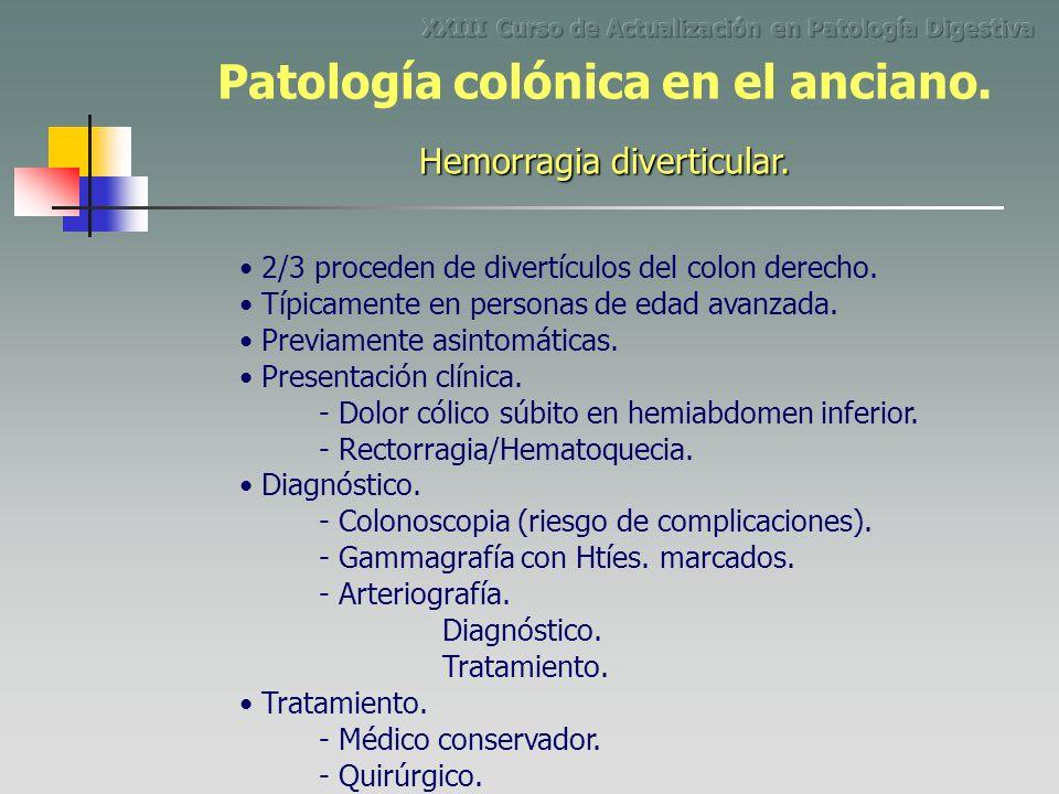 2/3 proceden de divertículos del colon derecho. - Dolor cólico súbito en hemiabdomen inferior. Típicamente en personas de edad avanzada. Previamente a