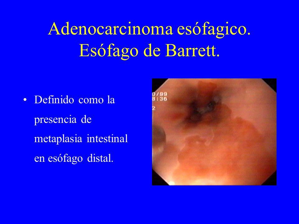 Adenocarcinoma esófagico. Esófago de Barrett. Definido como la presencia de metaplasia intestinal en esófago distal.