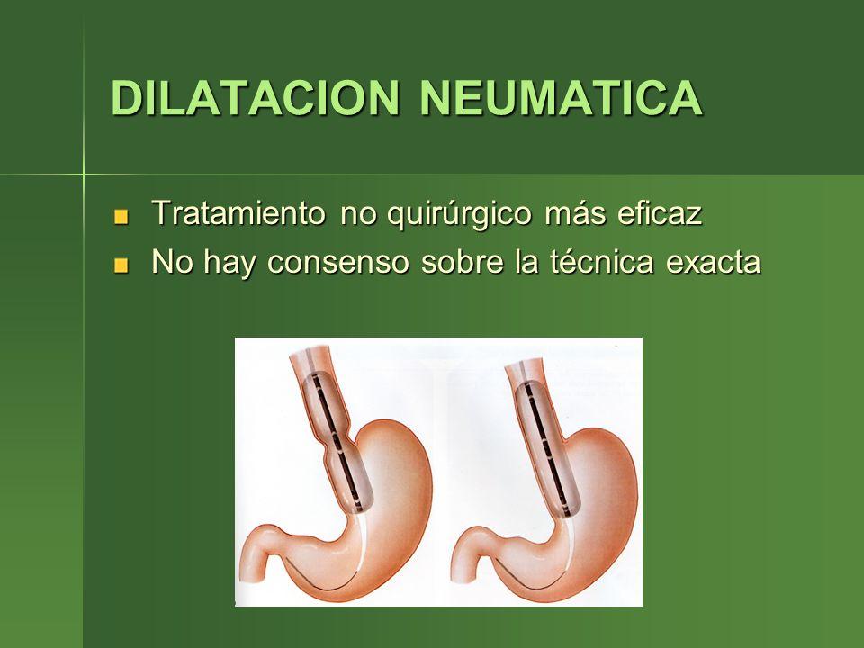 DILATACION NEUMATICA Tratamiento no quirúrgico más eficaz Tratamiento no quirúrgico más eficaz No hay consenso sobre la técnica exacta No hay consenso