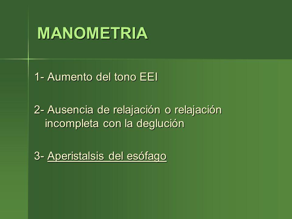 MANOMETRIA 1- Aumento del tono EEI 2- Ausencia de relajación o relajación incompleta con la deglución 3- Aperistalsis del esófago