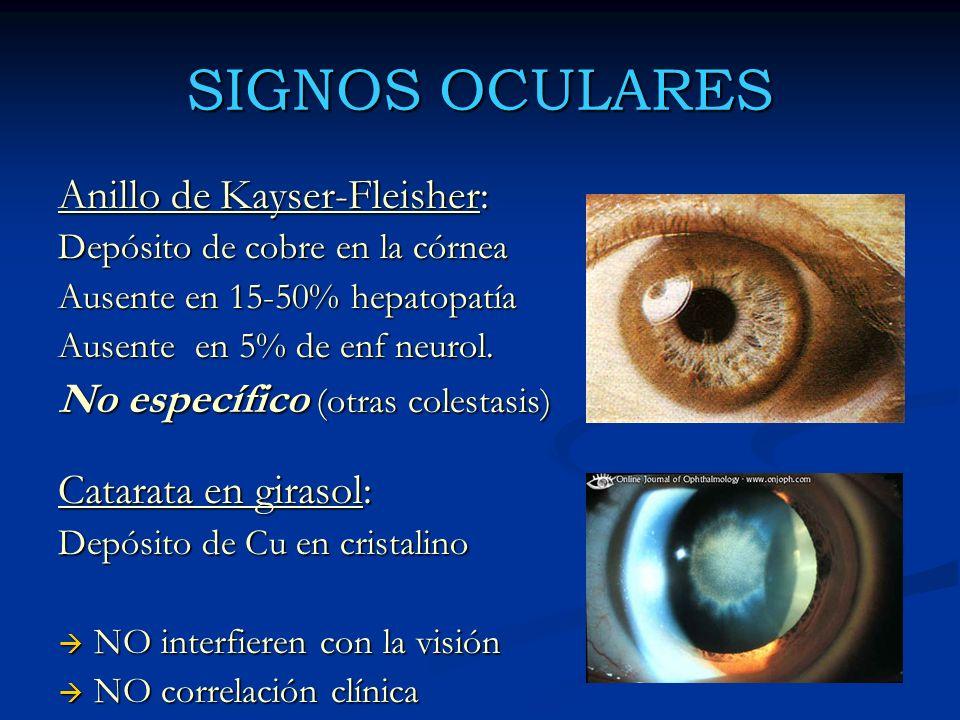 SIGNOS OCULARES Anillo de Kayser-Fleisher: Depósito de cobre en la córnea Ausente en 15-50% hepatopatía Ausente en 5% de enf neurol. No específico (ot