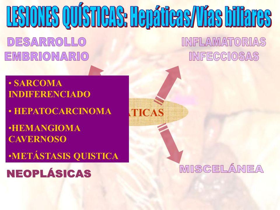 HEPÁTICAS SARCOMA INDIFERENCIADO HEPATOCARCINOMA HEMANGIOMA CAVERNOSO METÁSTASIS QUISTICA