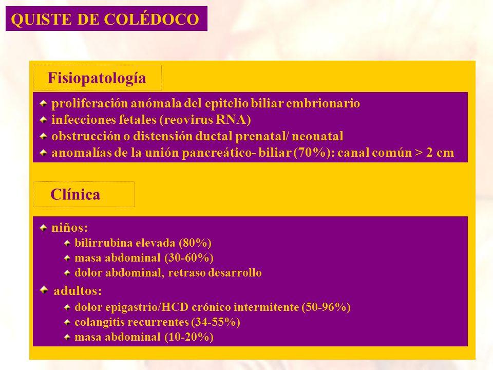 QUISTE DE COLÉDOCO proliferación anómala del epitelio biliar embrionario infecciones fetales (reovirus RNA) obstrucción o distensión ductal prenatal/