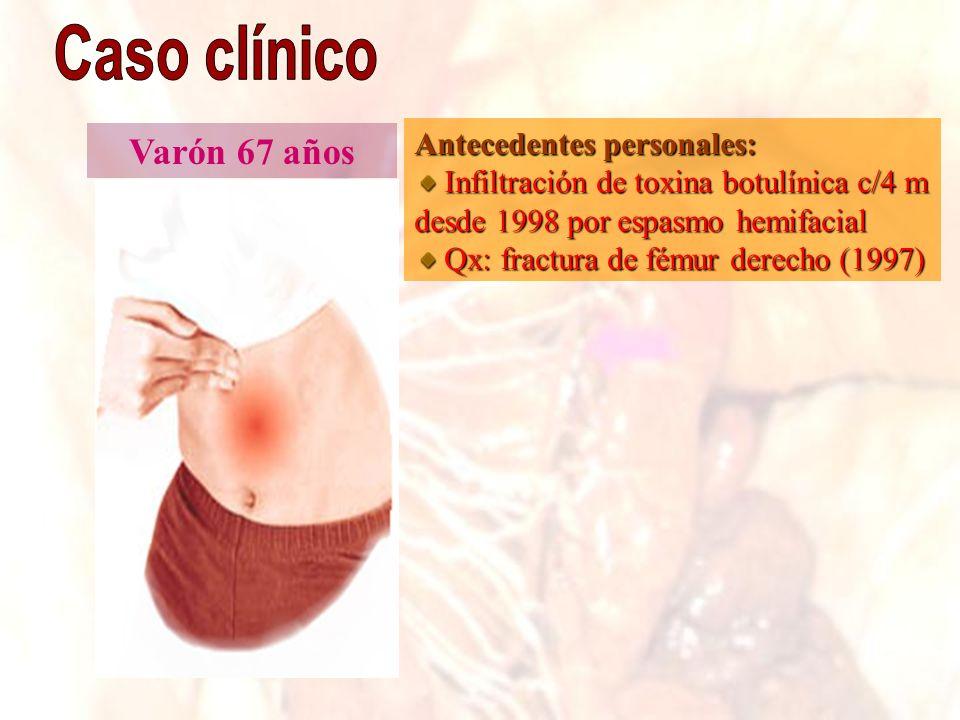 Varón 67 años Antecedentes personales: Infiltración de toxina botulínica c/4 m desde 1998 por espasmo hemifacial Infiltración de toxina botulínica c/4