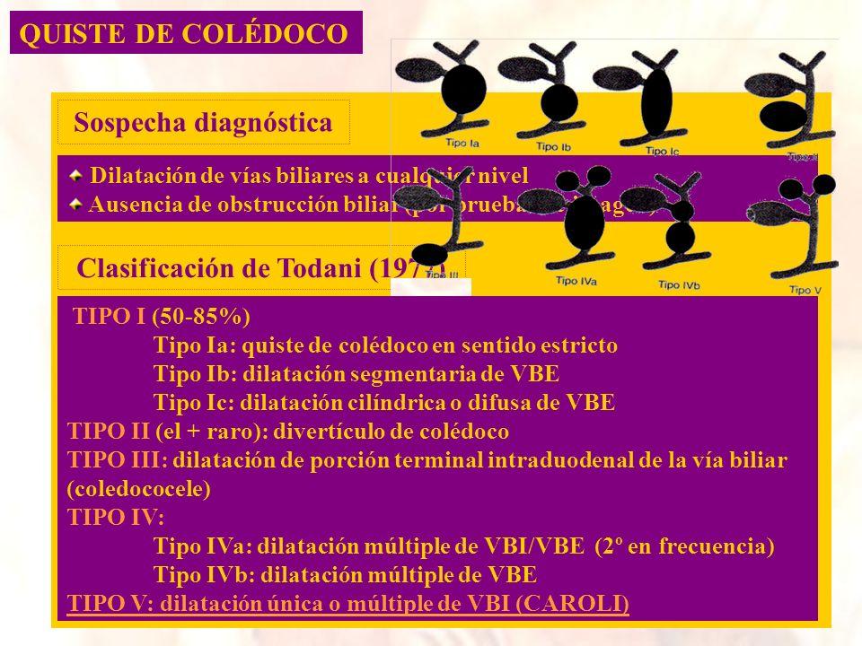 QUISTE DE COLÉDOCO Dilatación de vías biliares a cualquier nivel Ausencia de obstrucción biliar (por pruebas de imagen) Sospecha diagnóstica Clasifica