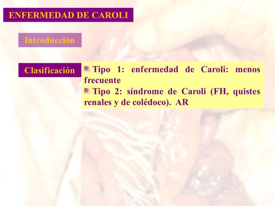 Introducción Clasificación Tipo 1: enfermedad de Caroli: menos frecuente Tipo 2: síndrome de Caroli (FH, quistes renales y de colédoco). AR ENFERMEDAD