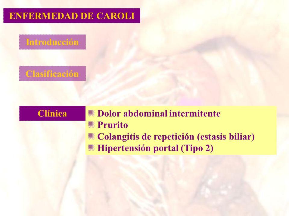 Introducción Clasificación Clínica Dolor abdominal intermitente Prurito Colangitis de repetición (estasis biliar) Hipertensión portal (Tipo 2) ENFERME