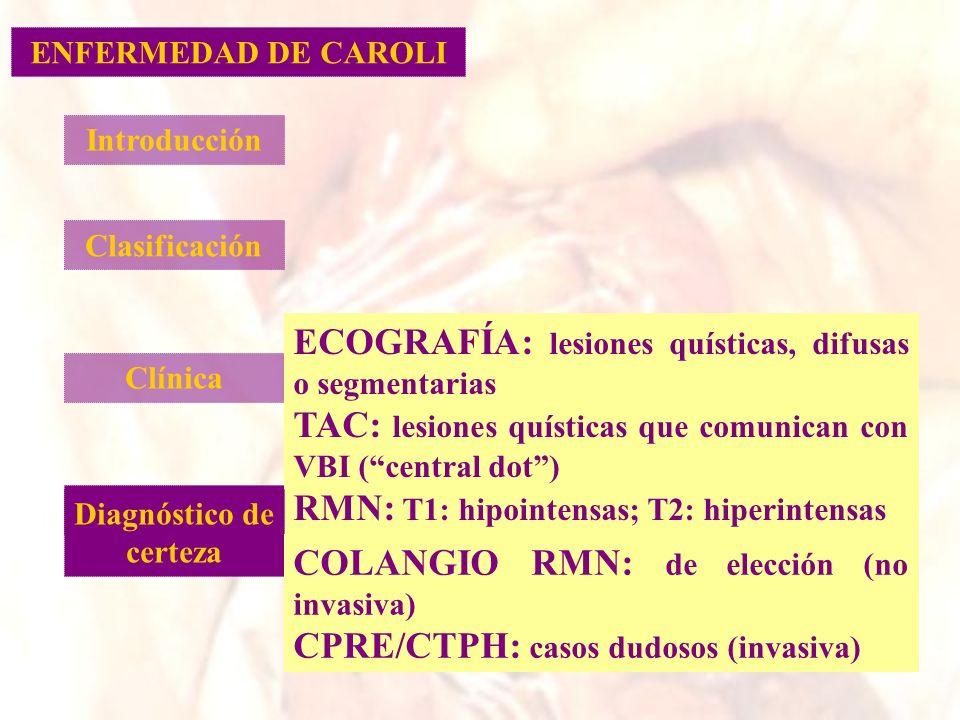 Introducción Clasificación Clínica Diagnóstico ECOGRAFÍA: lesiones quísticas, difusas o segmentarias TAC: lesiones quísticas que comunican con VBI (ce