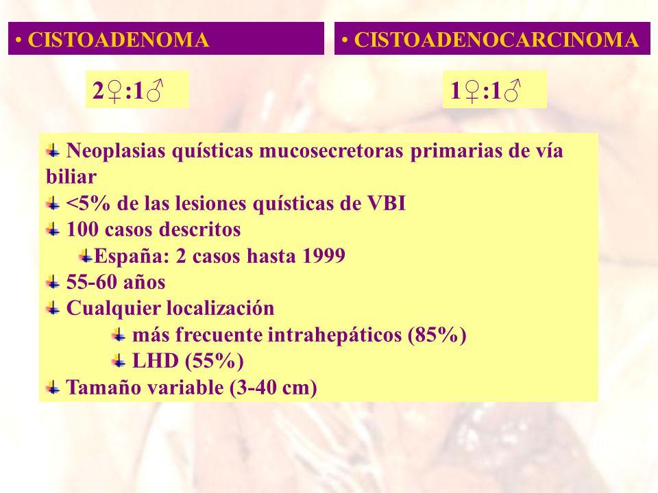 Neoplasias quísticas mucosecretoras primarias de vía biliar <5% de las lesiones quísticas de VBI 100 casos descritos España: 2 casos hasta 1999 55-60