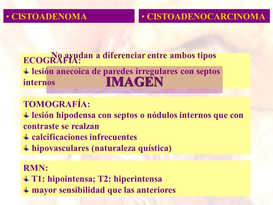 ECOGRAFÍA: lesión anecoica de paredes irregulares con septos internos CISTOADENOMA CISTOADENOCARCINOMA IMAGEN No ayudan a diferenciar entre ambos tipo