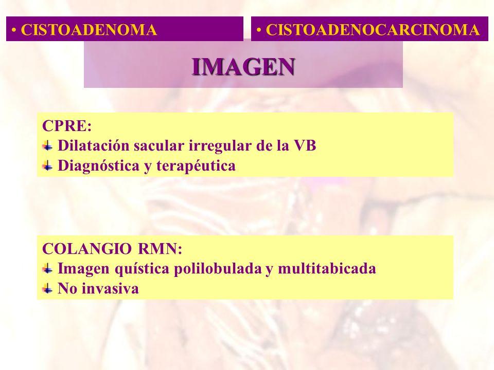 CISTOADENOMA CISTOADENOCARCINOMA IMAGEN CPRE: Dilatación sacular irregular de la VB Diagnóstica y terapéutica COLANGIO RMN: Imagen quística polilobula