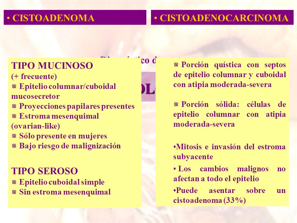 CISTOADENOMA CISTOADENOCARCINOMA HISTOLOGÍA Diagnóstico de certeza TIPO MUCINOSO (+ frecuente) Epitelio columnar/cuboidal mucosecretor Proyecciones pa