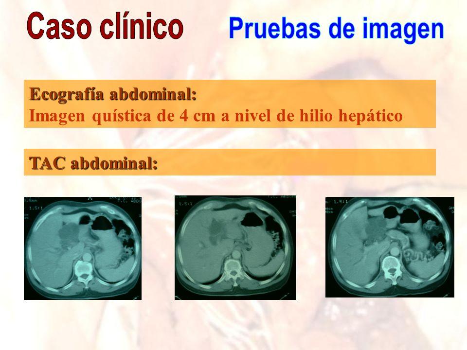 Ecografía abdominal: Imagen quística de 4 cm a nivel de hilio hepático TAC abdominal: