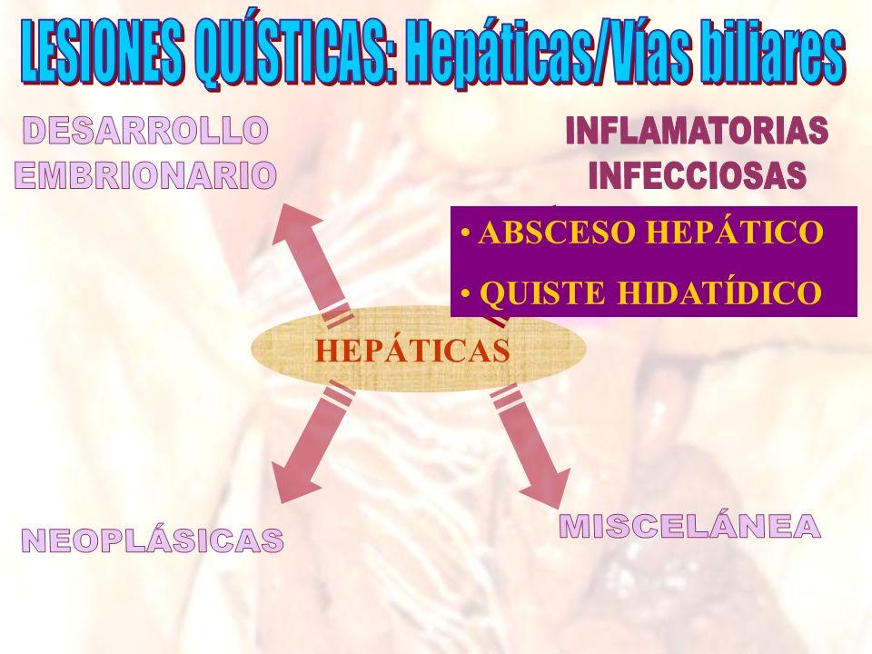 HEPÁTICAS ABSCESO HEPÁTICO QUISTE HIDATÍDICO