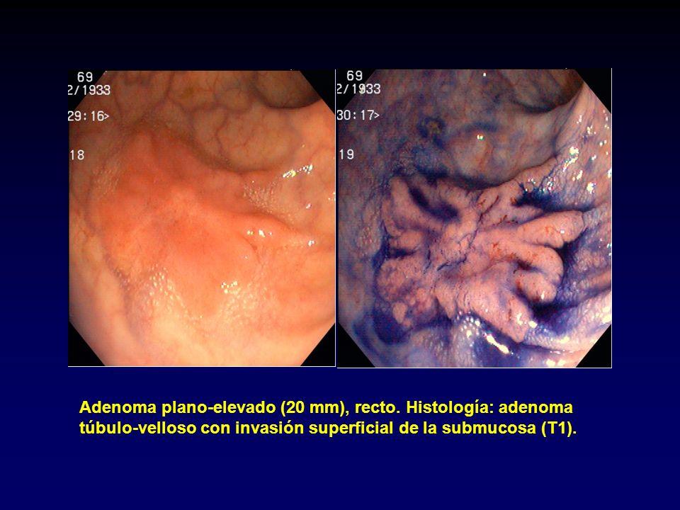 Cáncer plano-deprimido (7 mm), ciego. Histología: adenocarcinoma (T2).