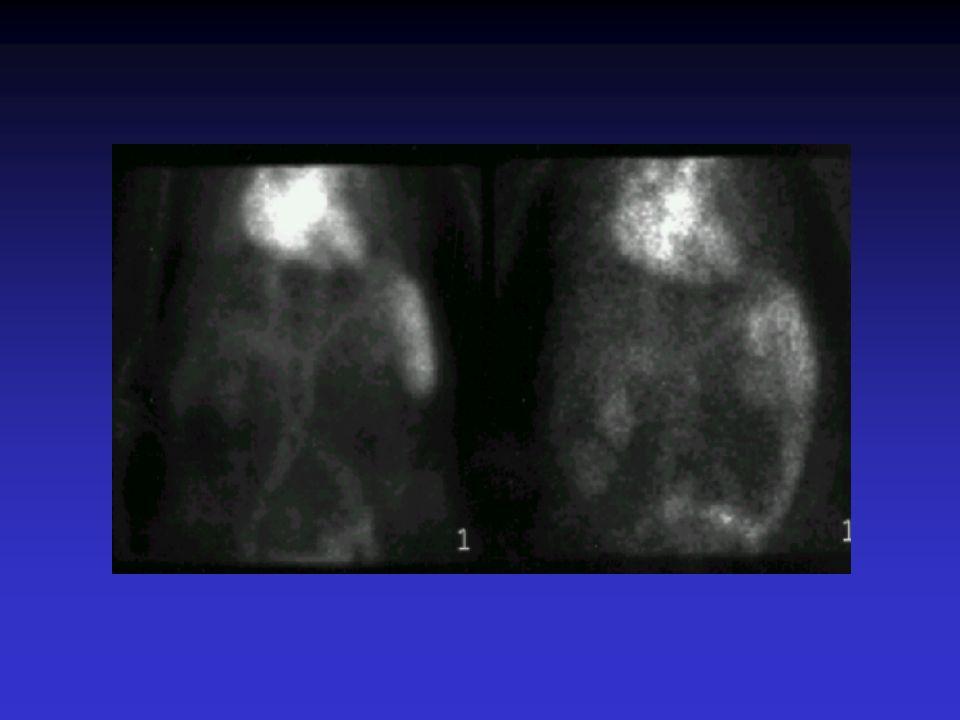 CASO CLINICO COLONOSCOPIA (24 horas tras gammagrafía): –Sangre reciente en colon descendente.