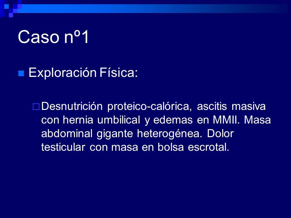 Caso nº2 Eco abdominal. Hepatomegalia con hígado homogéneo y ascitis moderada.
