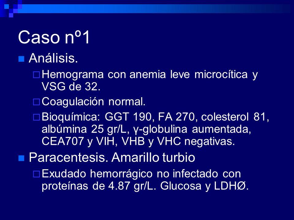 Caso nº1 Eco-PAAF.Múltiples implantes peritoneales.