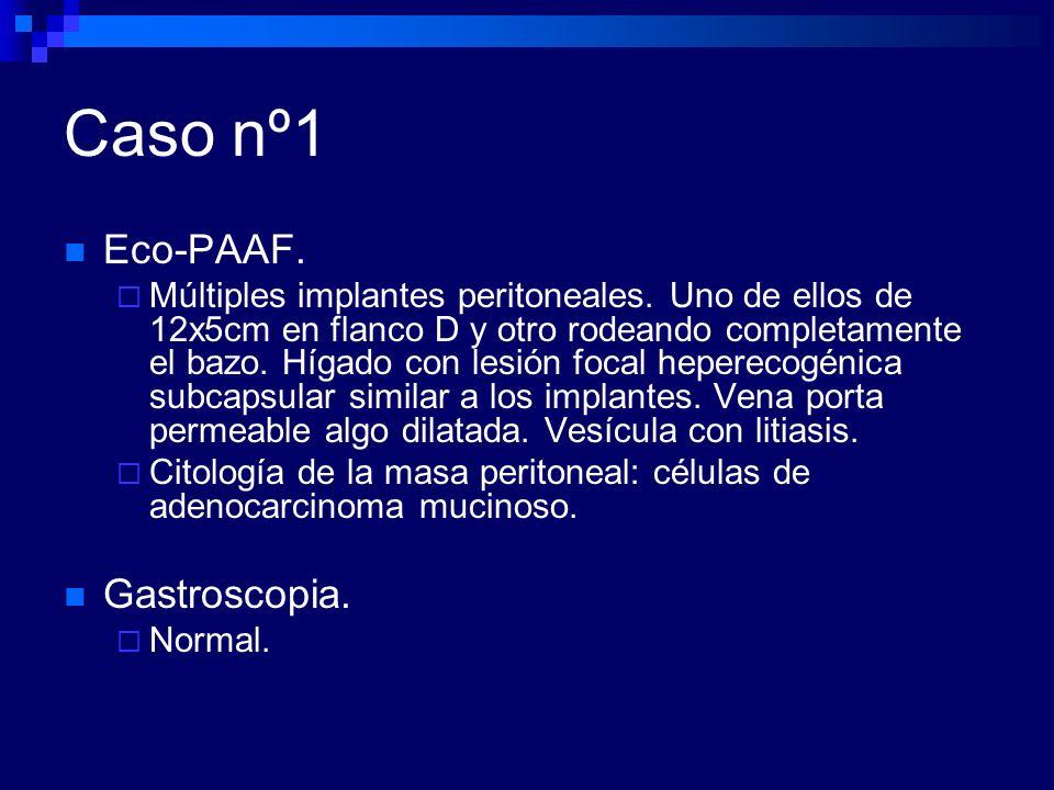 Caso nº3 Análisis.Hemograma normal. VSG de 39. Coagulación normal.