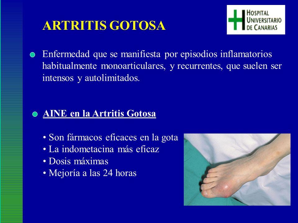 ARTRITIS GOTOSA Enfermedad que se manifiesta por episodios inflamatorios habitualmente monoarticulares, y recurrentes, que suelen ser intensos y autol