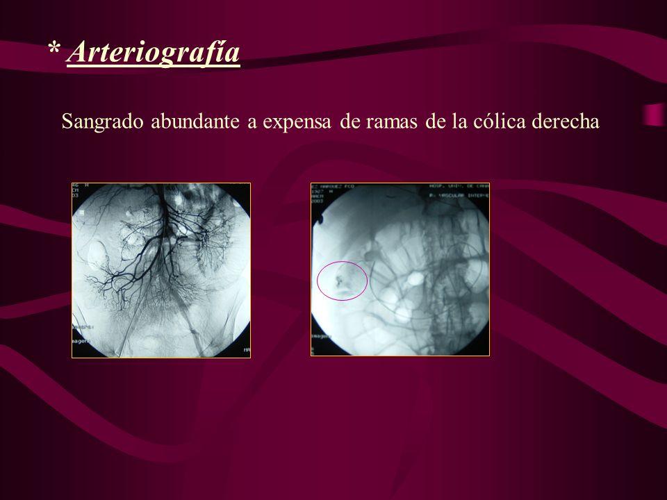 * Arteriografía Sangrado abundante a expensa de ramas de la cólica derecha