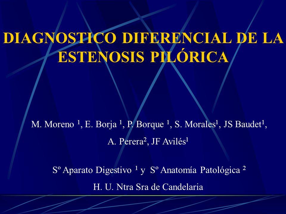 DIAGNOSTICO DIFERENCIAL DE LA ESTENOSIS PILÓRICA M.
