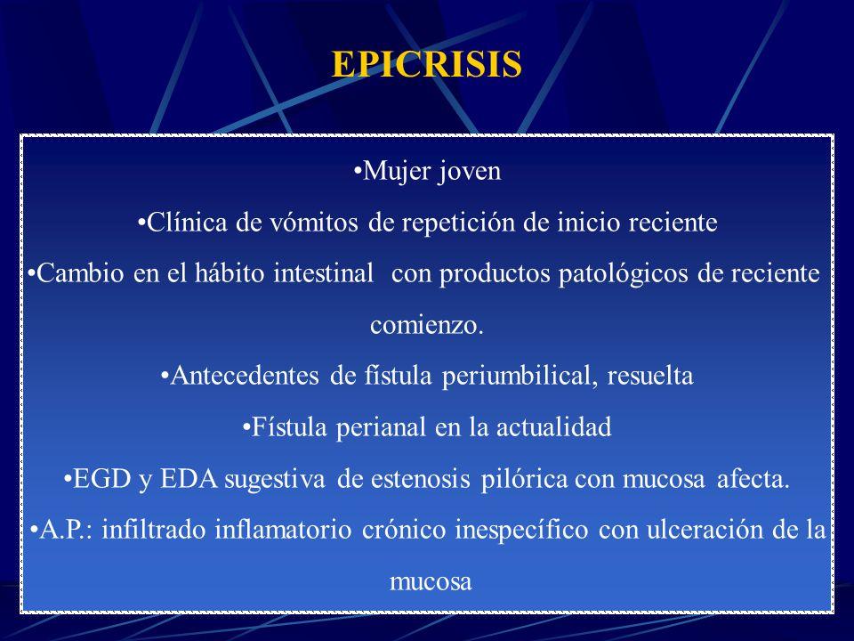 DIAGNÓSTICO DIFERENCIAL OBSTRUCCIÓN DEL TRACTO DE SALIDA GÁSTRICO 1.Patología péptica.