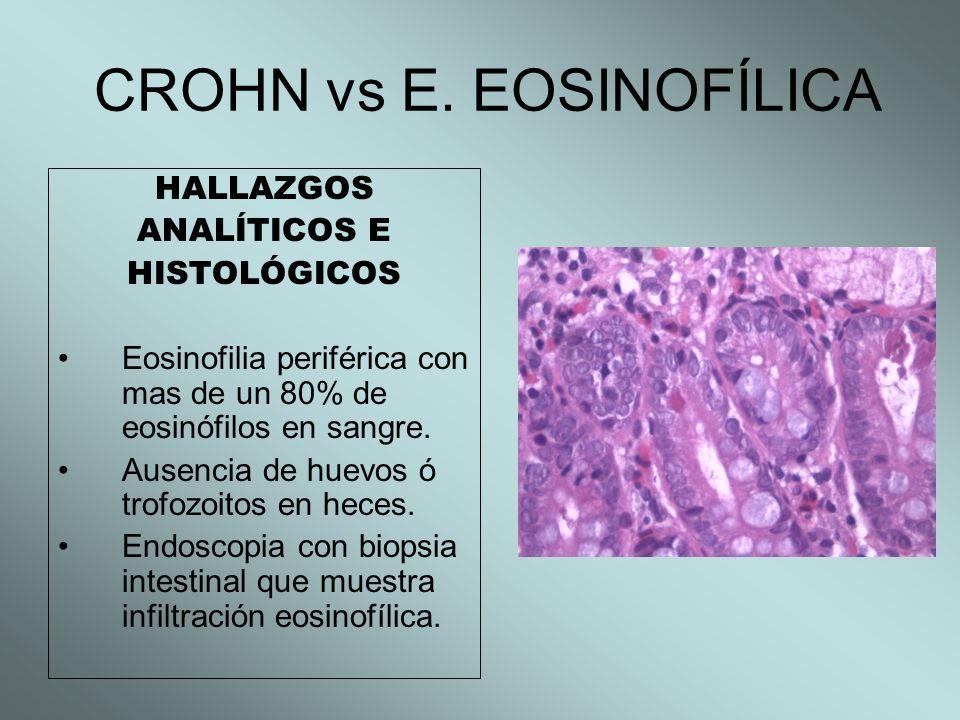 CROHN vs E. EOSINOFÍLICA HALLAZGOS ANALÍTICOS E HISTOLÓGICOS Eosinofilia periférica con mas de un 80% de eosinófilos en sangre. Ausencia de huevos ó t
