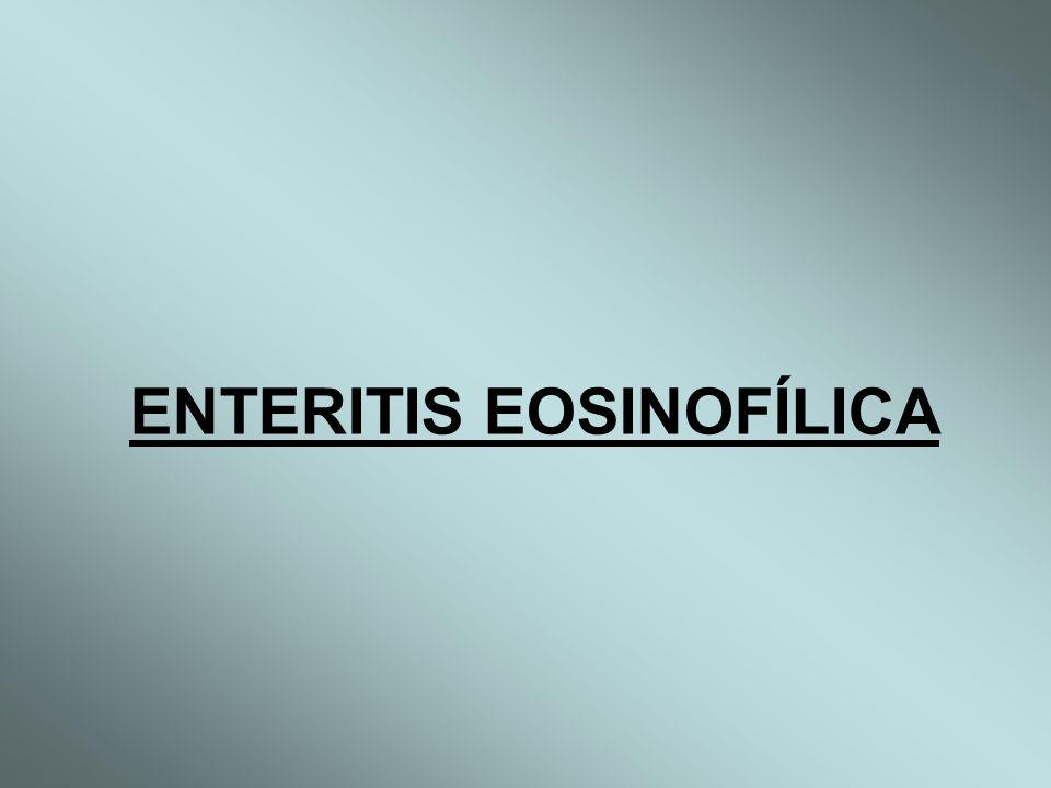 ENTERITIS EOSINOFÍLICA